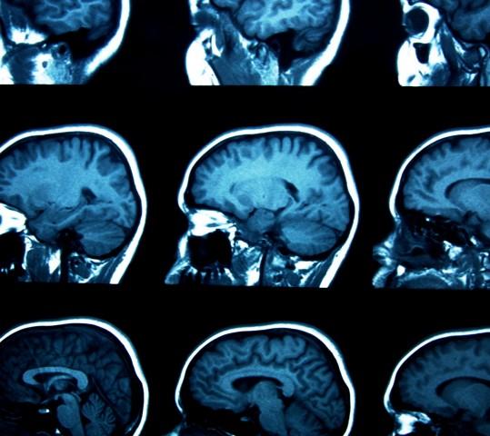 Filozofia a neuronauki